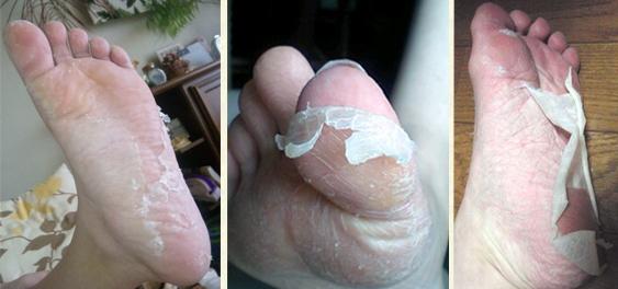 Шелушится кожа что делать в домашних условиях